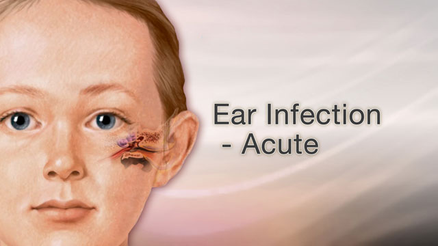 <div class=media-desc><strong>Ear infection - acute</strong><p>Ear infections are one of the most common reasons parents take their children to the doctor. The most common type is called otitis media, which means an inflammation and infection of the middle ear. The middle ear is located just behind the eardrum.</p></div>
