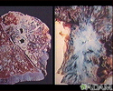 Tuberculosis in the lung