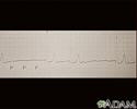 Atrioventricular block,  ECG tracing