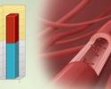 Health risks of hyperlipidemia