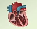 Ventricluar fibrillation and tachycardia